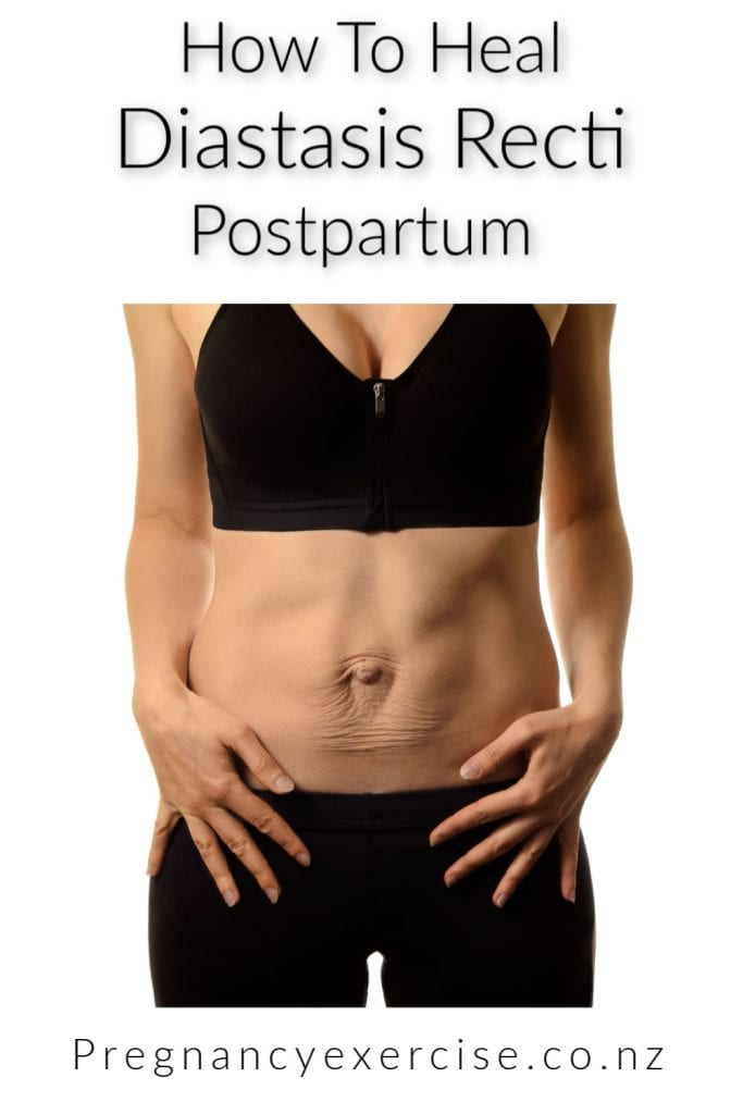 How To Heal Diastasis Recti Postpartum