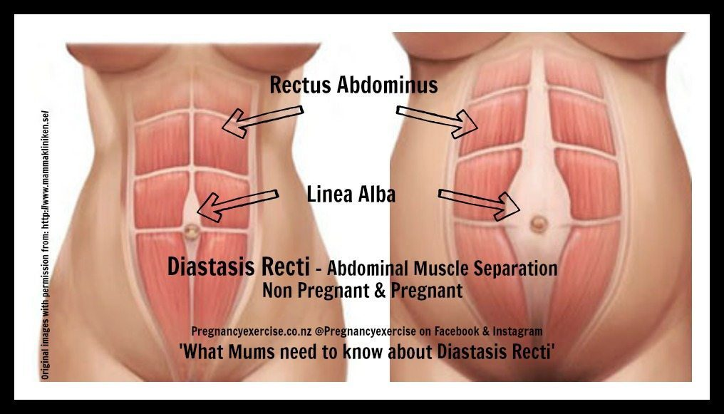 Diastasis recti, what mums need to know about abdominal muscle separation