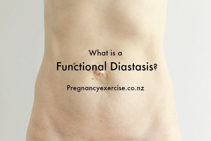 What is a Functional Diastasis and how to assess your separation