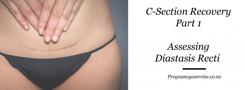 Assessing Diastasis recti