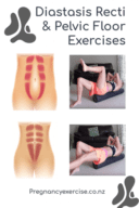 Diastasis Recti And pelvic Floor Exercises